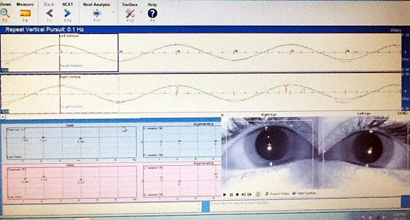 video nystagmography exam chart for tracking eye movement